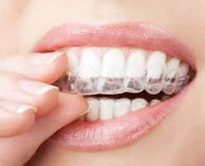 ortodoncia-3