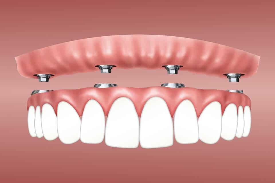 el verdadero valor de los implantes dentales en barcelona