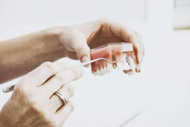 El verdadero valor de los implantes dentales I