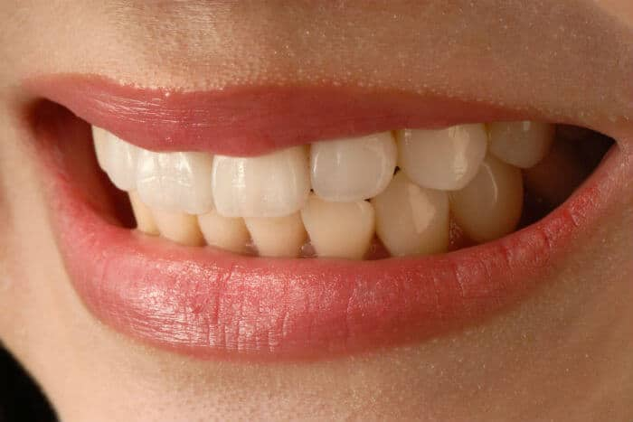 Consigue una sonrisa más atractiva con las carillas dentales