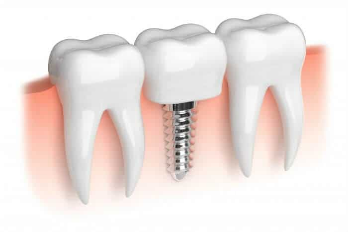 Qué debes saber antes de ponerte un implante dental – Parte II