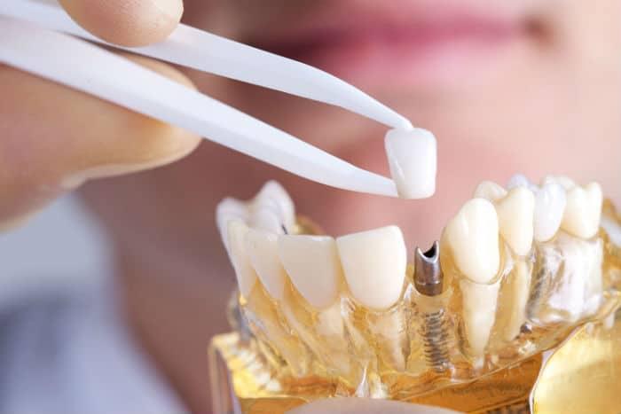 ¿Cuáles son las mejores marcas de implantes dentales?