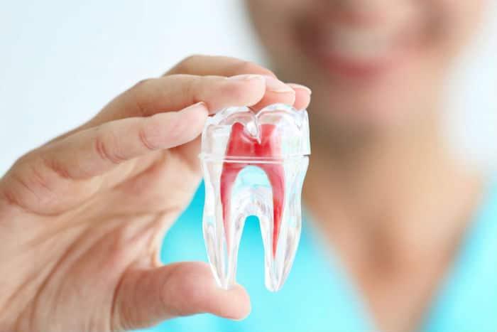 ¿Cuándo hay que llevar a cabo una endodoncia?