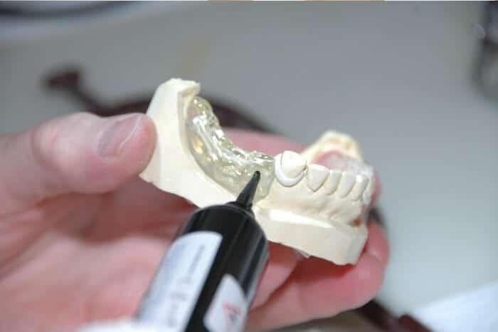 El mejor material para prótesis dentales