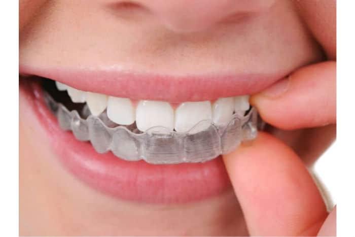 5-cosas-que-debes-saber-antes-de-llevar-a-cabo-un-tratamiento-invisalign-en-nuestra-clinica-dental-de-barcelona