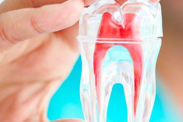 5 cosas que debes saber sobre la endodoncia birradicular
