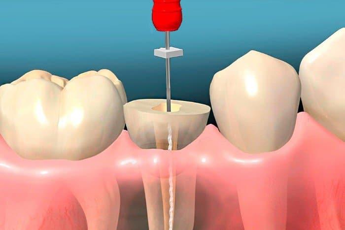 ¿Qué es una endodoncia unirradicular?