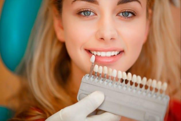 Carillas dentales Barcelona: Las 7 claves de su éxito como tratamiento de estética