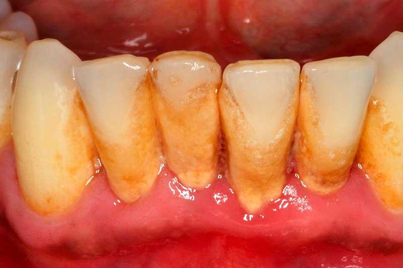 sangrado-encias-clinica-dental-puyuelo-barcelona