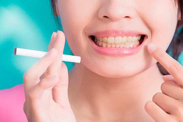 dientes-amarillos-por-tabaco-puyuelo