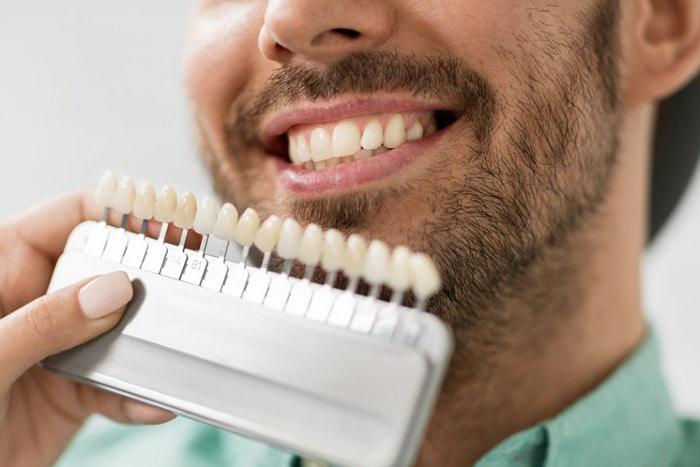 ¿Qué problemas de estética solucionan las carillas dentales?