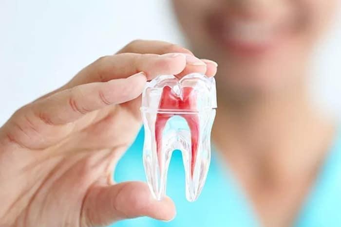¿Cómo se soluciona el problema de tener un diente negro?
