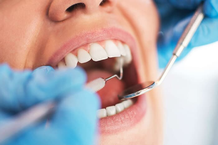 ¿Cuándo realizar un curetaje dental?