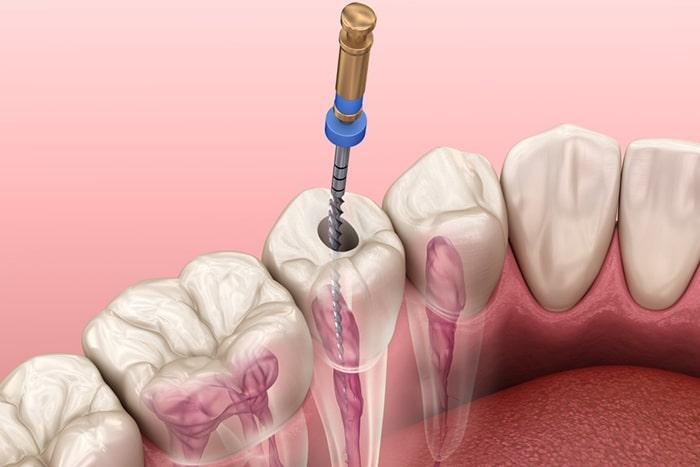 endodoncia-en-barcelona-matar-el-nervio-de-un-diente-2