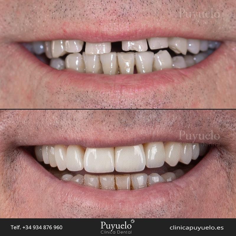 ad-carillas-dentales-dientes-cortos-malposición