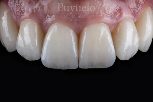 carillas-dentales-de-porcelana-en-barcelona