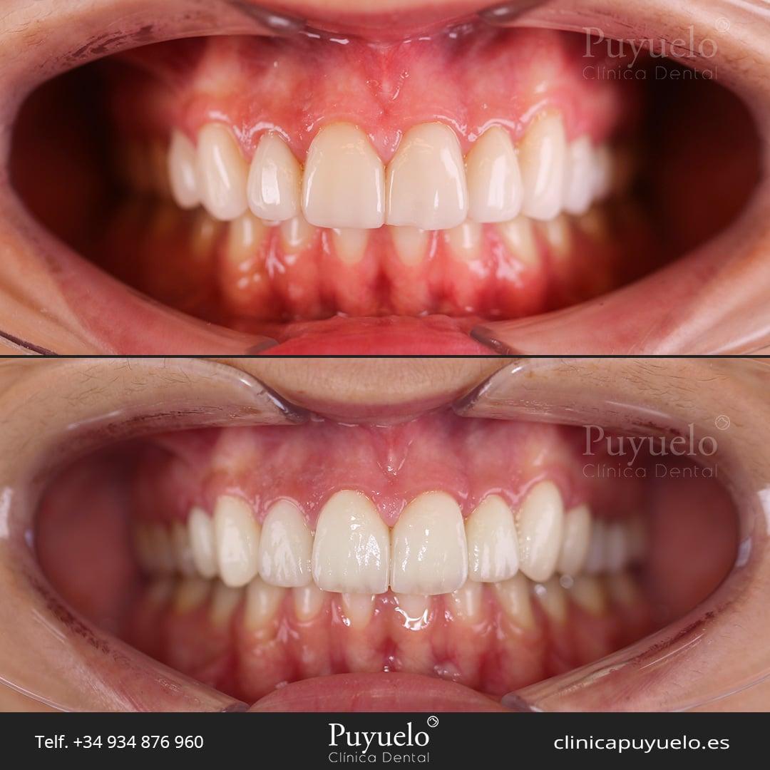 caso-ad-carillas-dentales