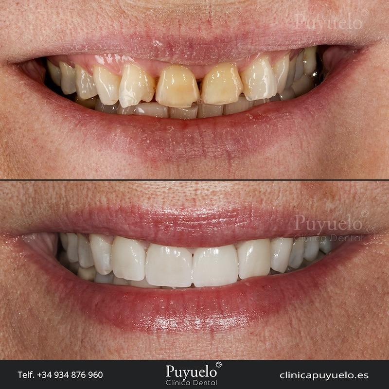 caso-dientes-desgastados-carillas-dentales