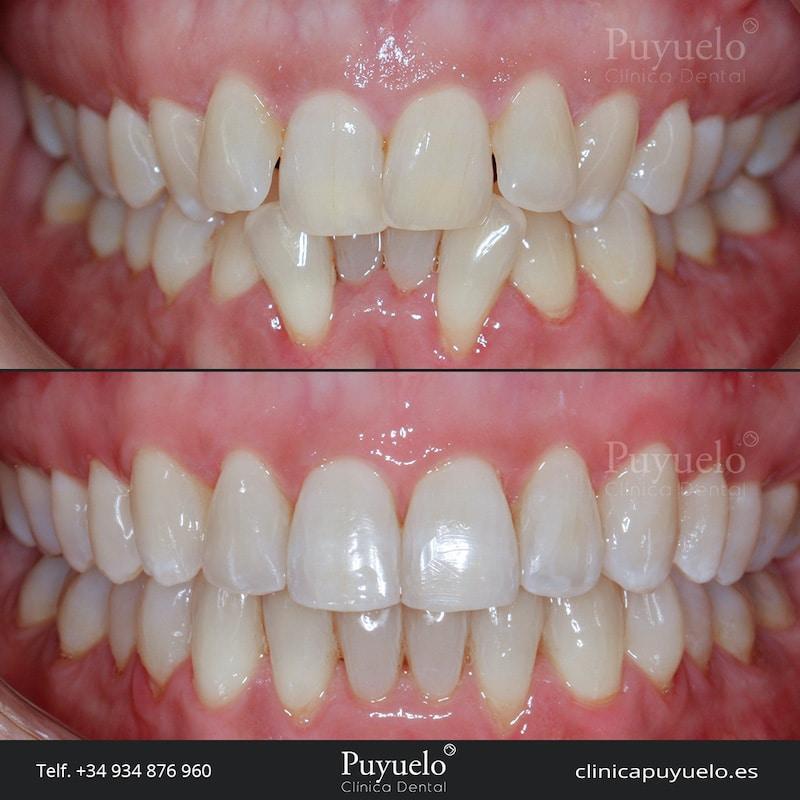 caso-ad-ortodoncia-invisalign