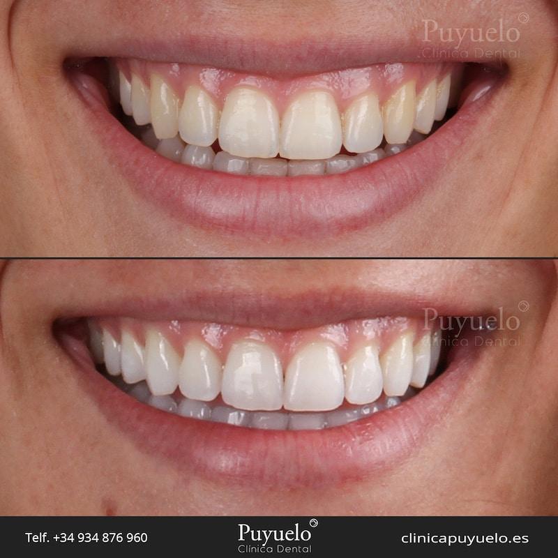 caso-blanqueamiento-dental-en-barcelona-caso-2
