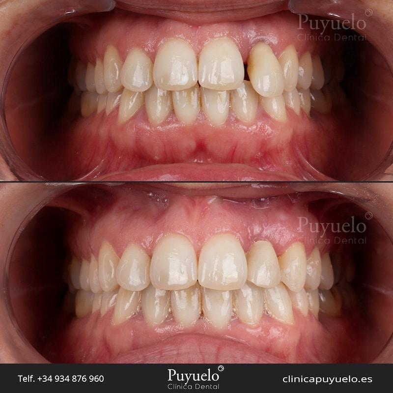 caso-implantes-dentales-carga-inmediata