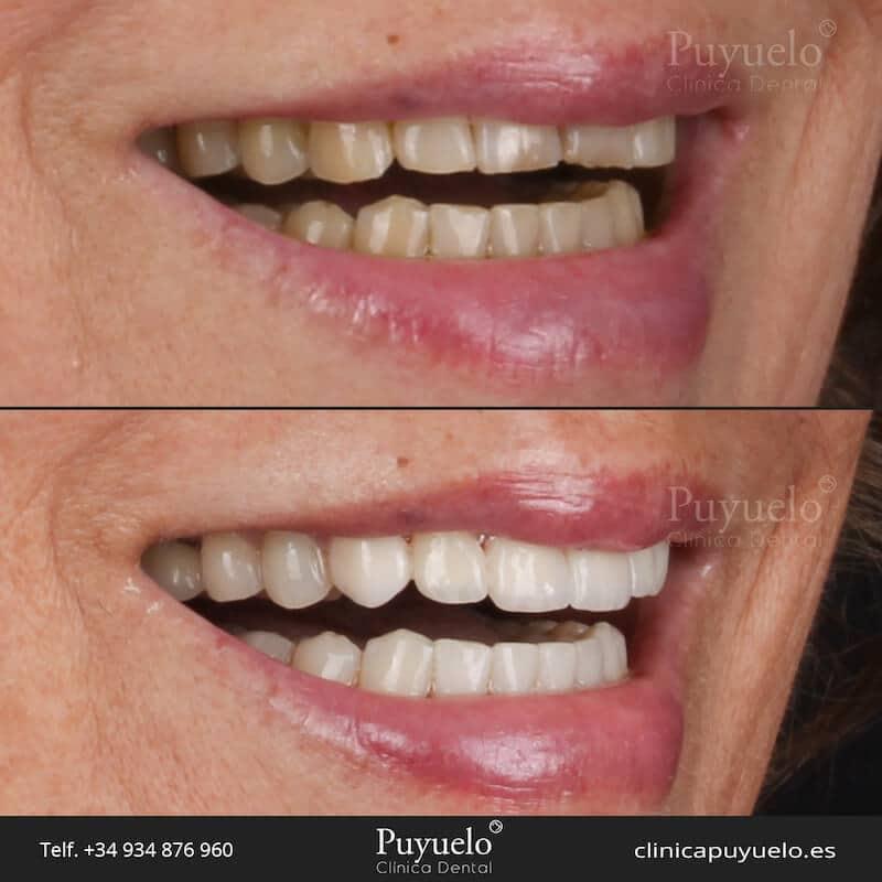 antes y despues de carillas dentales en barcelona