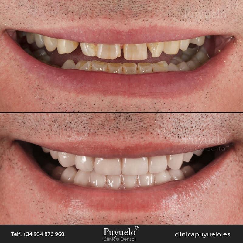 antes y despues de carillas dentales en dientes amarillos