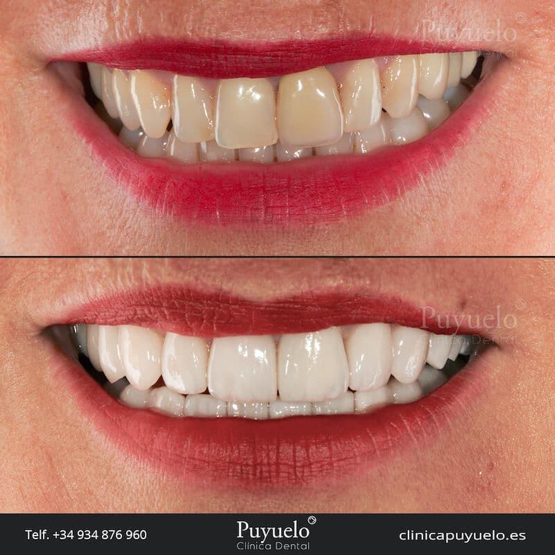antes y despues de carillas dentales para dientes mas blancos