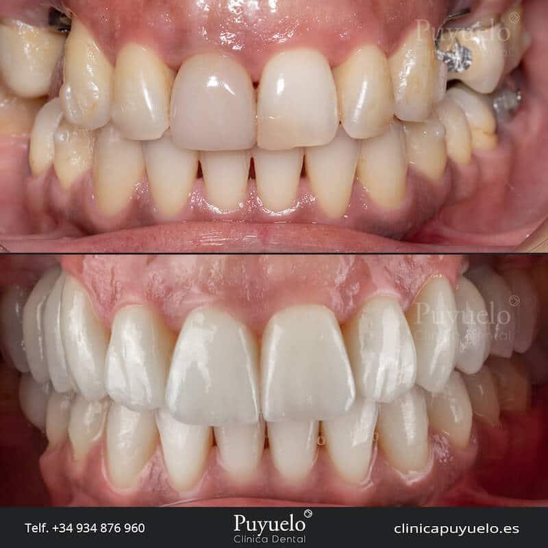 antes y despues de fundas dentales