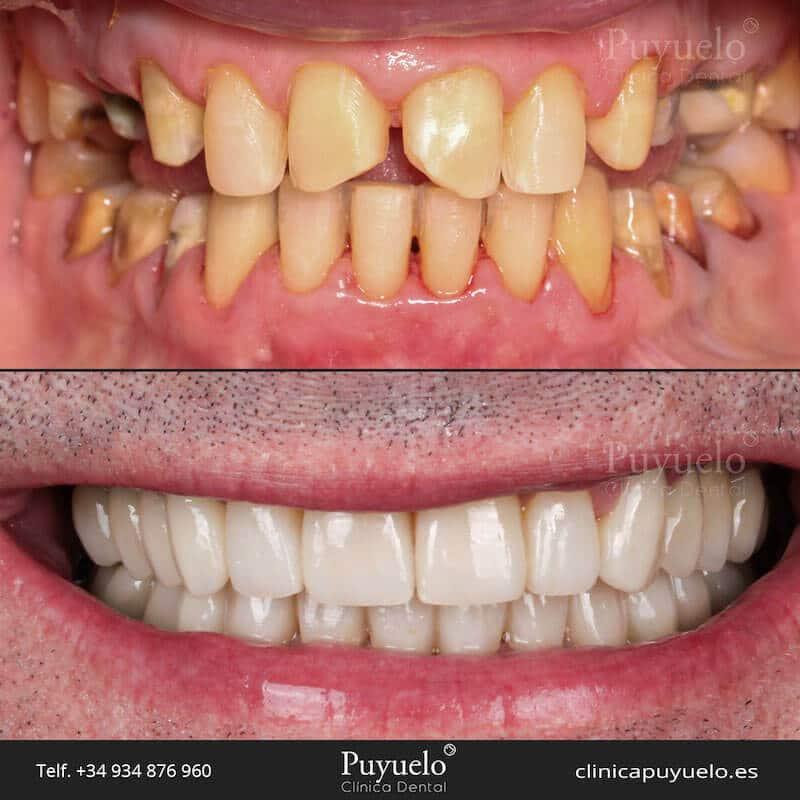 antes y despues de las fundas dentales