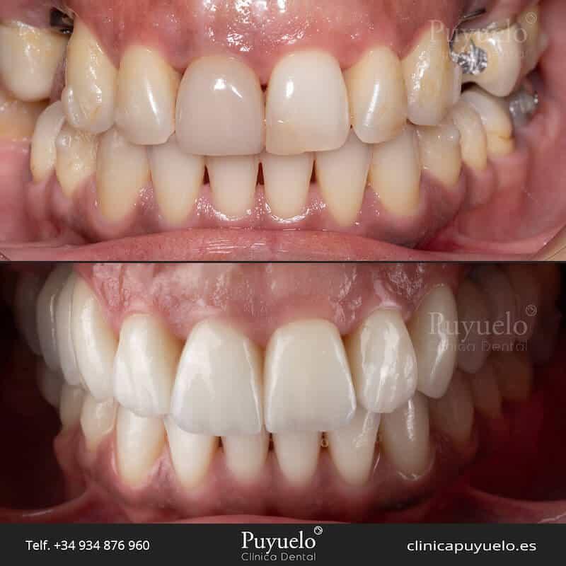 antes y despues protesis dentales