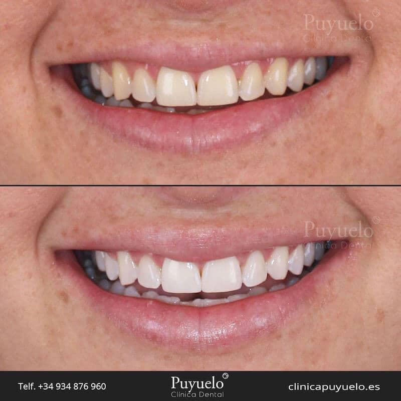 caso antes y despues de blanqueamiento dental
