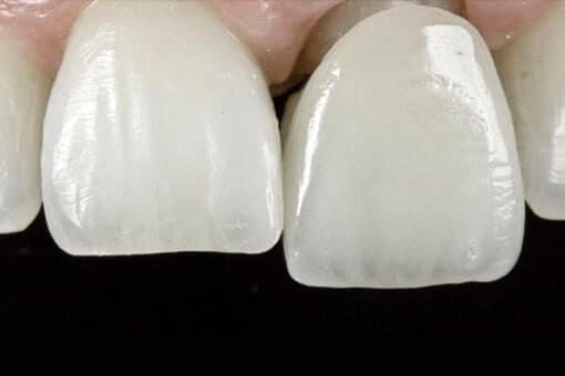 coronas dentales barcelona