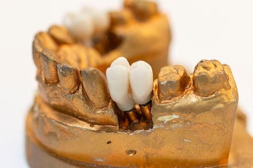 protesis dentales barcelona