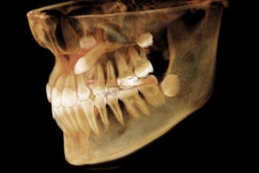 radiografia cirugia oral barcelona