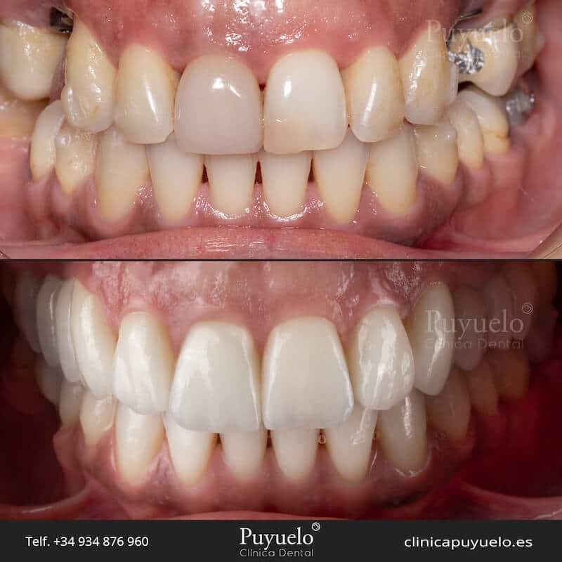 caso-antes-despues-implantes-y-protesis-dental-carillas-puyuelo-barcelona