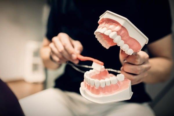 abfraccion dental que es