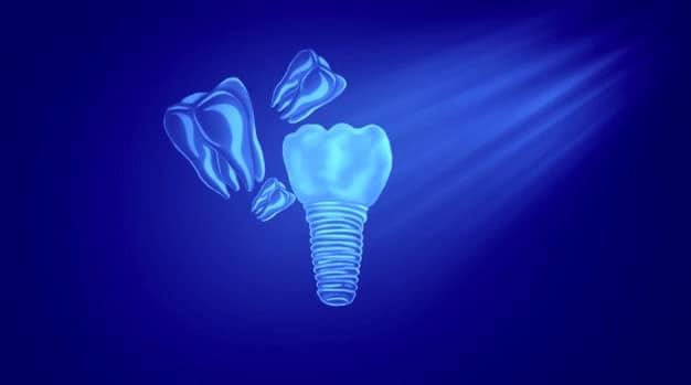 puentes dentales fijos